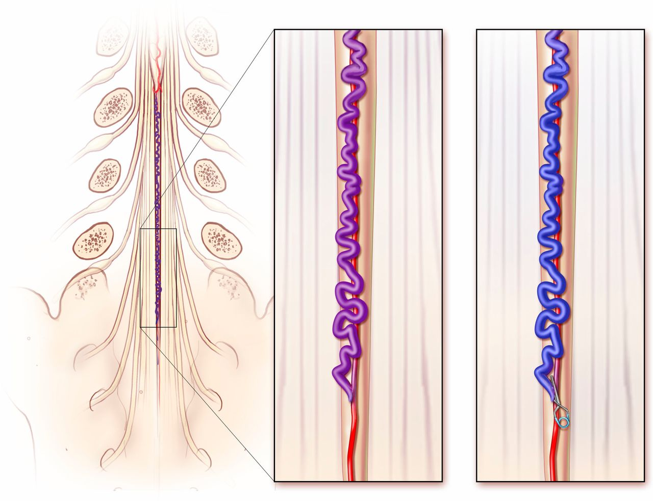 Arteriovenous Fistulae Of The Filum Terminale Journal Of Neurointerventional Surgery Filum terminale (ft) is a structure that is intimately associated with conus medullaris, the most caudal part of the spinal cord. arteriovenous fistulae of the filum