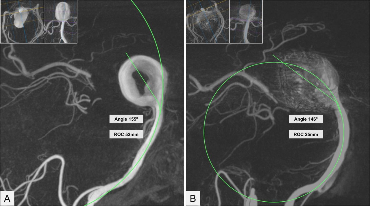 The 'bendy' basilar: progressive aneurysm tilting and