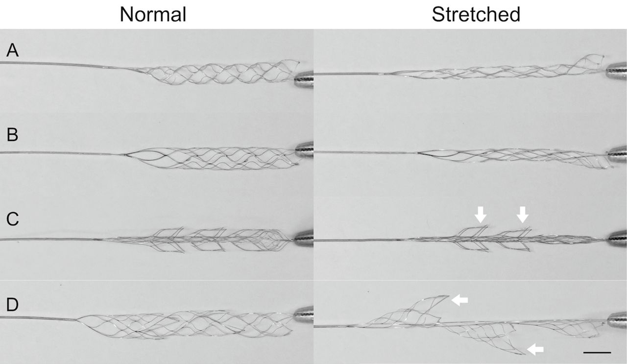 Stent retrievers with segmented design improve the efficacy