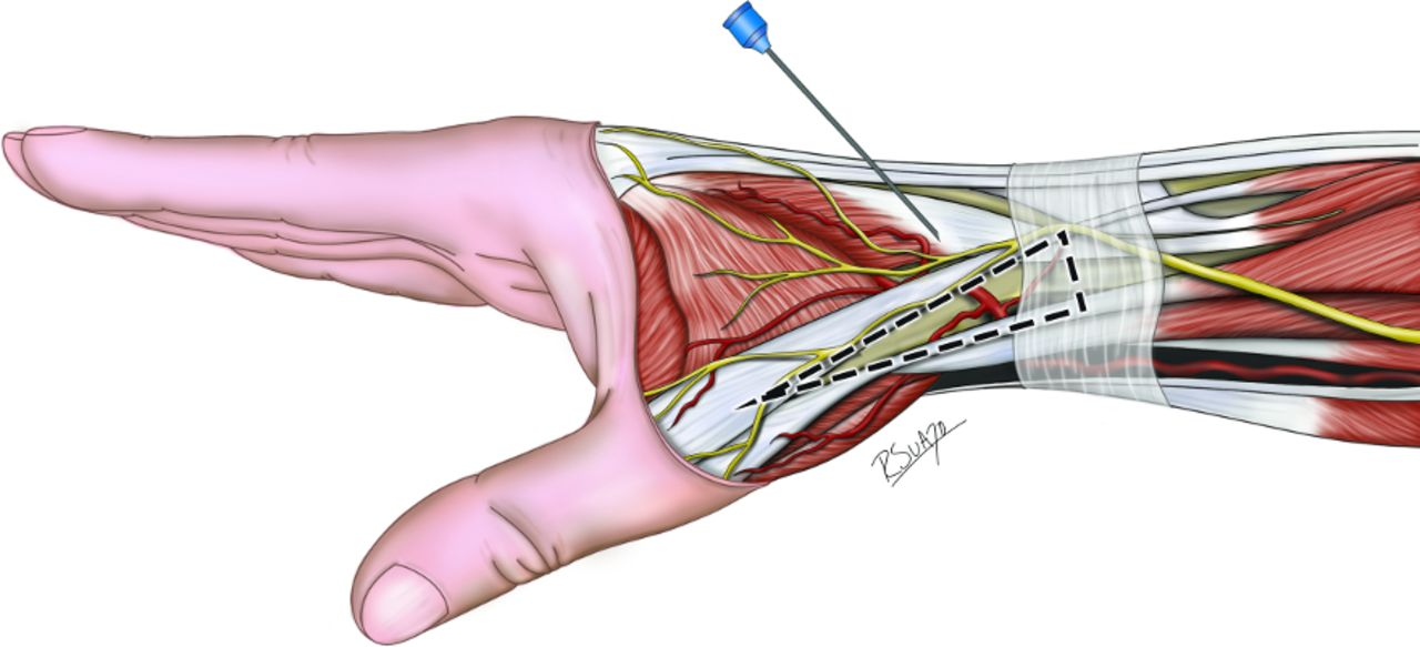 Distal Transradial Access In The Anatomical Snuffbox For Diagnostic Cerebral Angiography Journal Of Neurointerventional Surgery Exploring the shoulder programme online course: distal transradial access in the