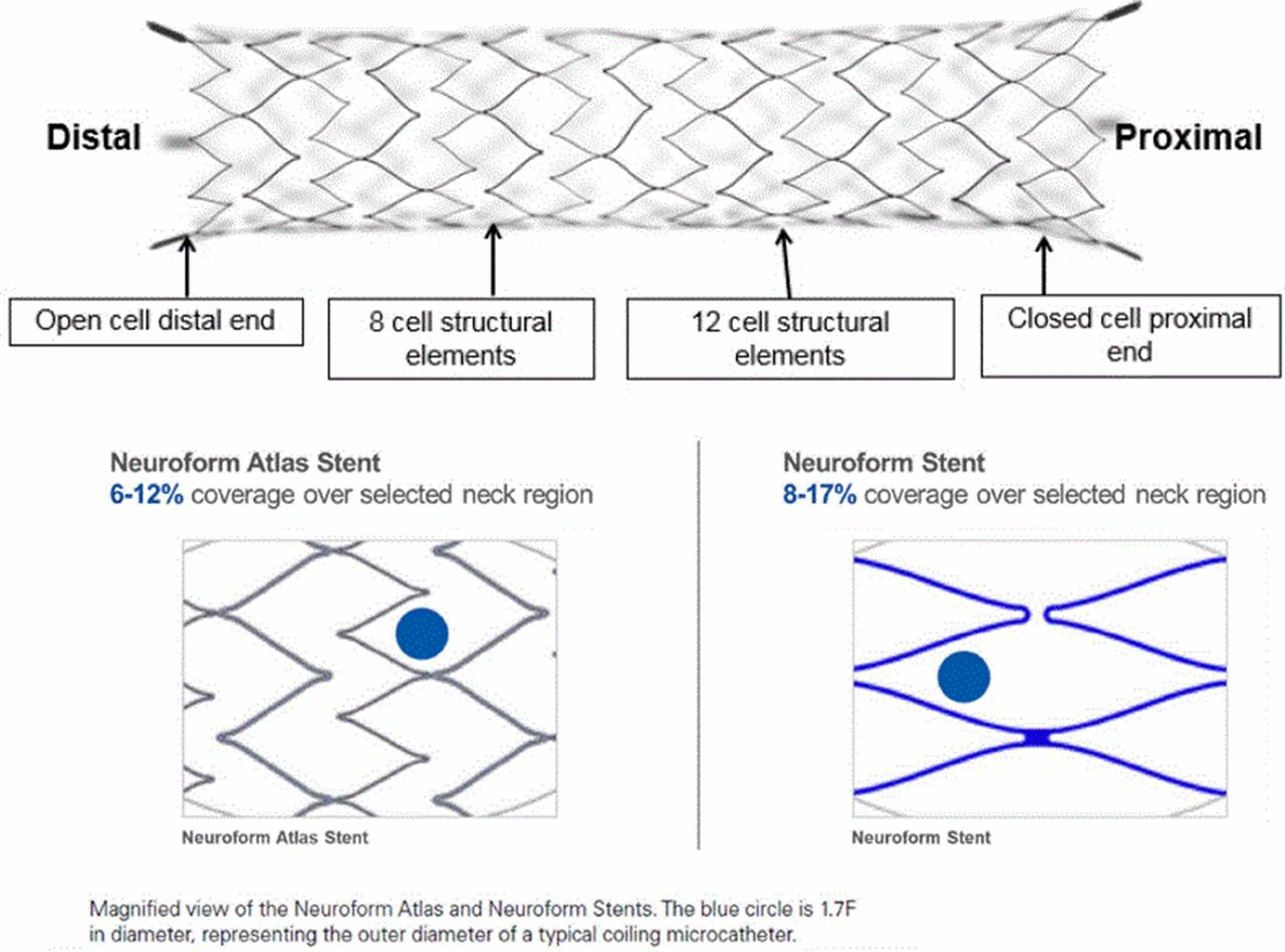 Neuroform Atlas Stent System for the treatment of