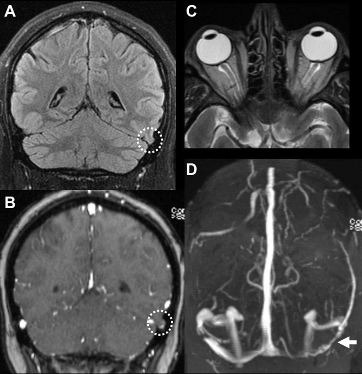 E-059 Dural venous sinus cephaloceles in the pulsatile