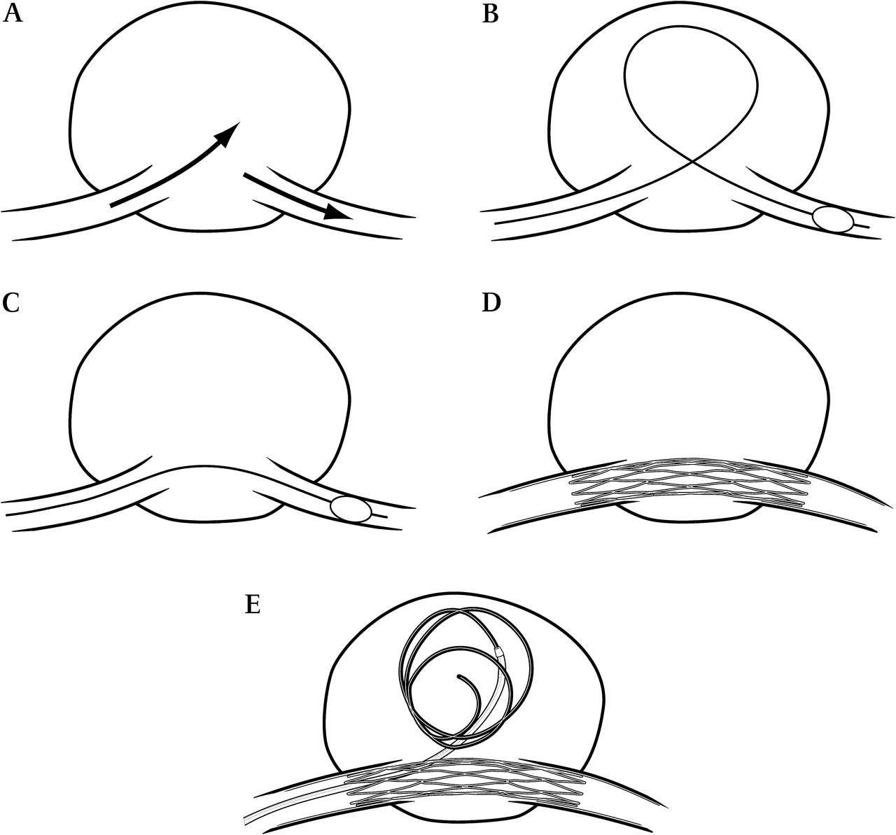 fusiform swelling achilles tendon surgery