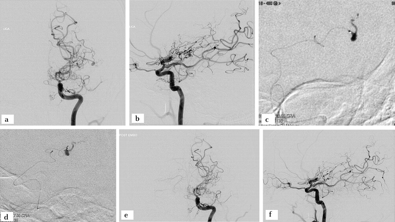 Nbca Embolization Of A Ruptured Intraventricular Distal Anterior