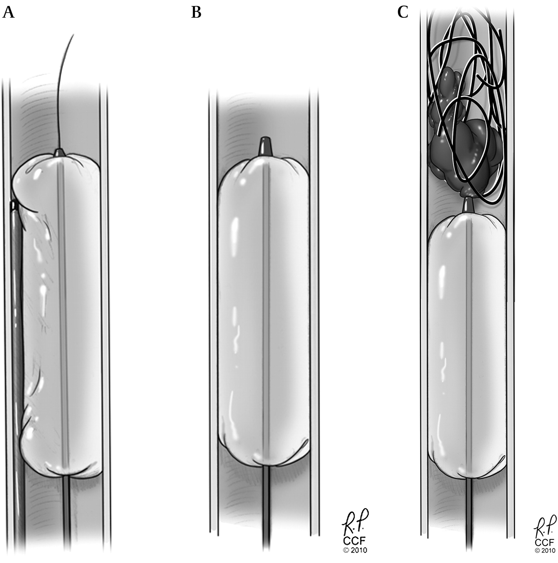 Balloon-augmented carotid artery sacrifice with Onyx: a proof of