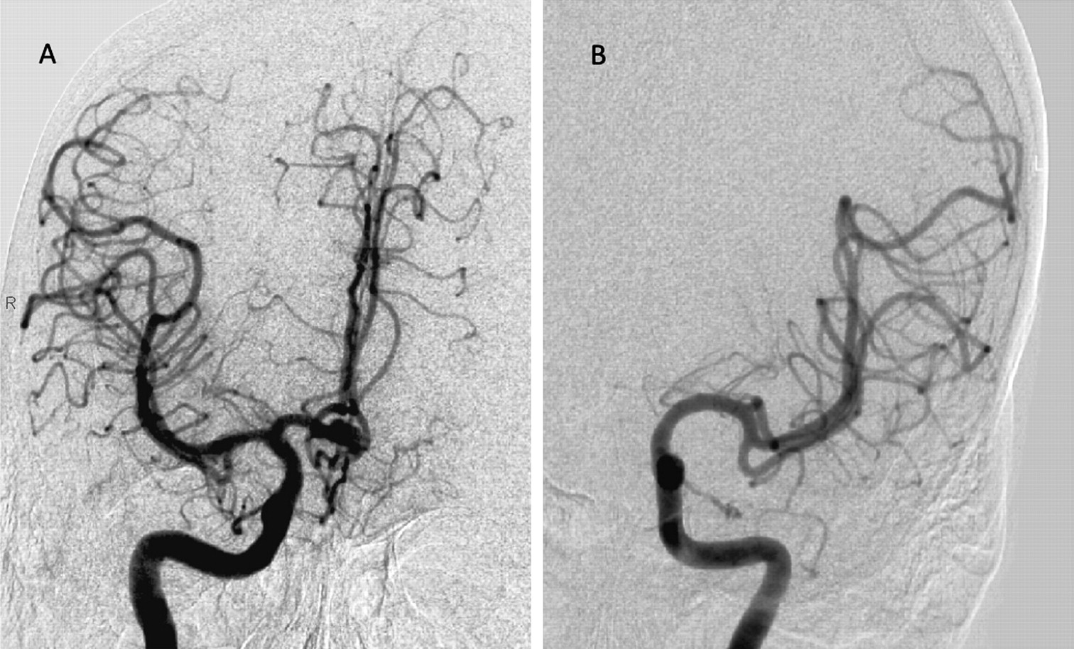 The Role Of Circle Of Willis Anomalies In Cerebral Aneurysm Rupture