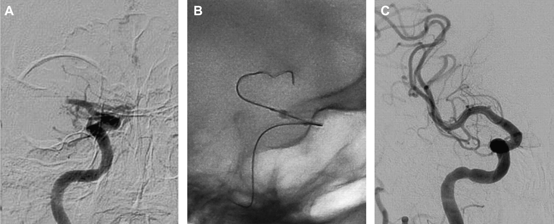 The Penumbra Stroke System: a technical review | Journal of