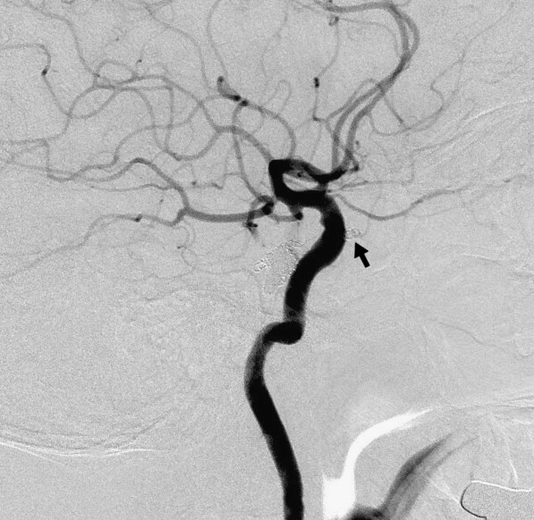 Transorbital Direct Puncture Of The Posterior Cavernous Sinus
