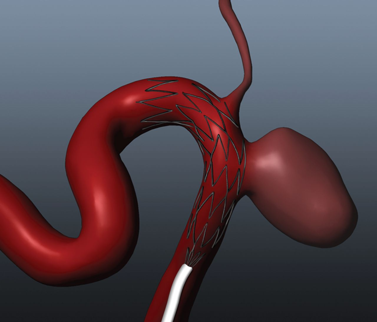 In vitro and in silico study of intracranial stent treatments for cerebral  aneurysms: effects on perforating vessel flows | Journal of  NeuroInterventional Surgery