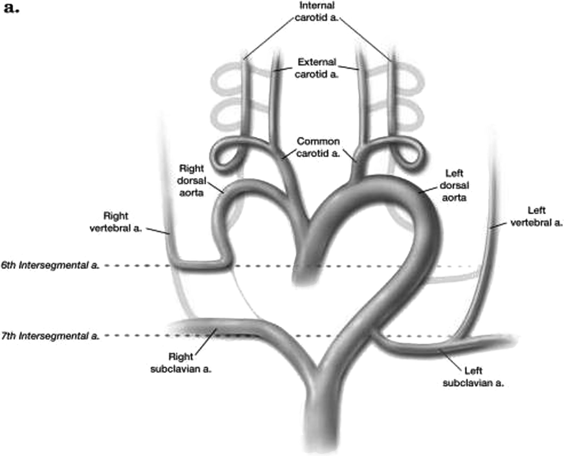 Anomalous Origin Of The Right Vertebral Artery From The Right Common