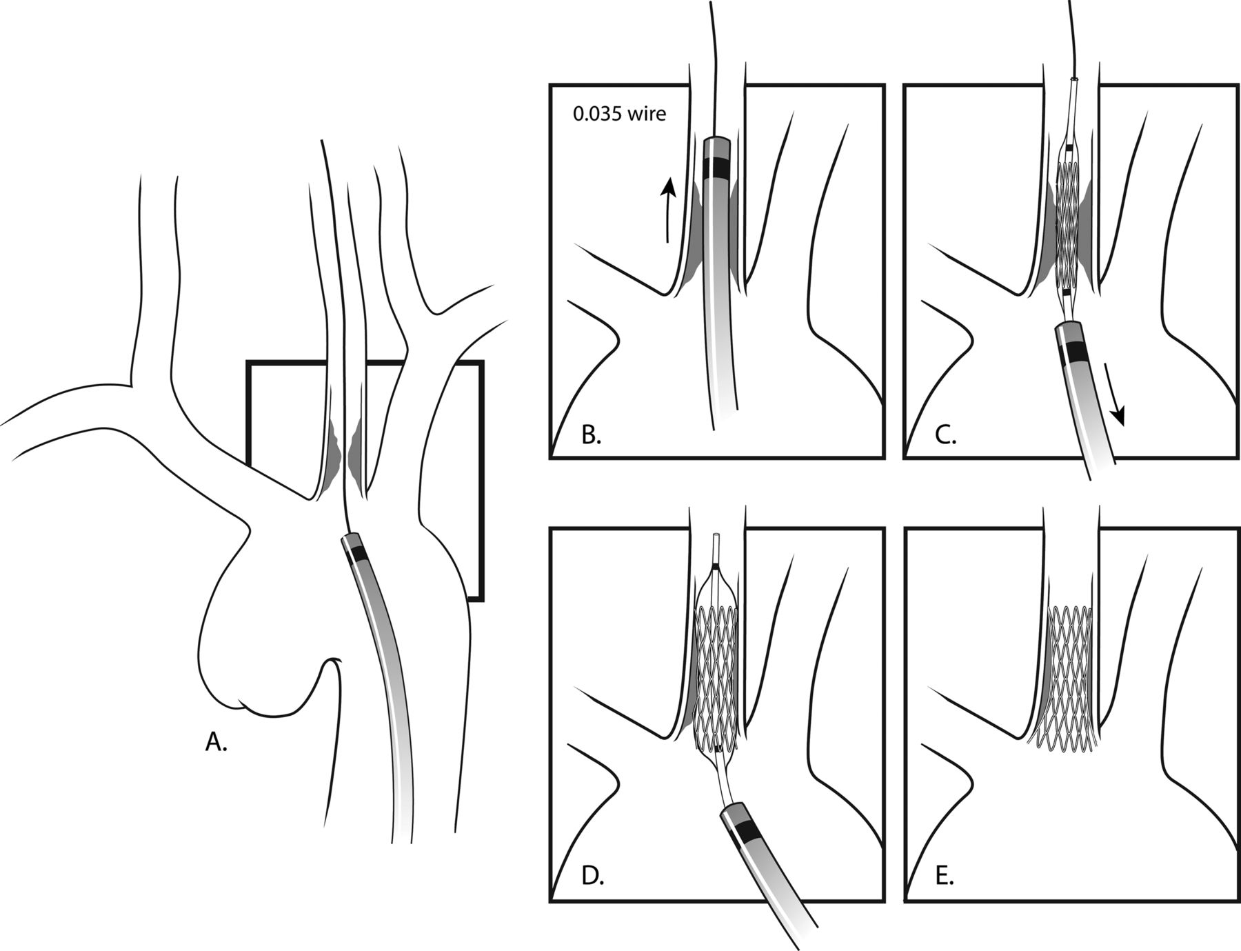 Transfemoral endovascular treatment of atherosclerotic stenotic ...