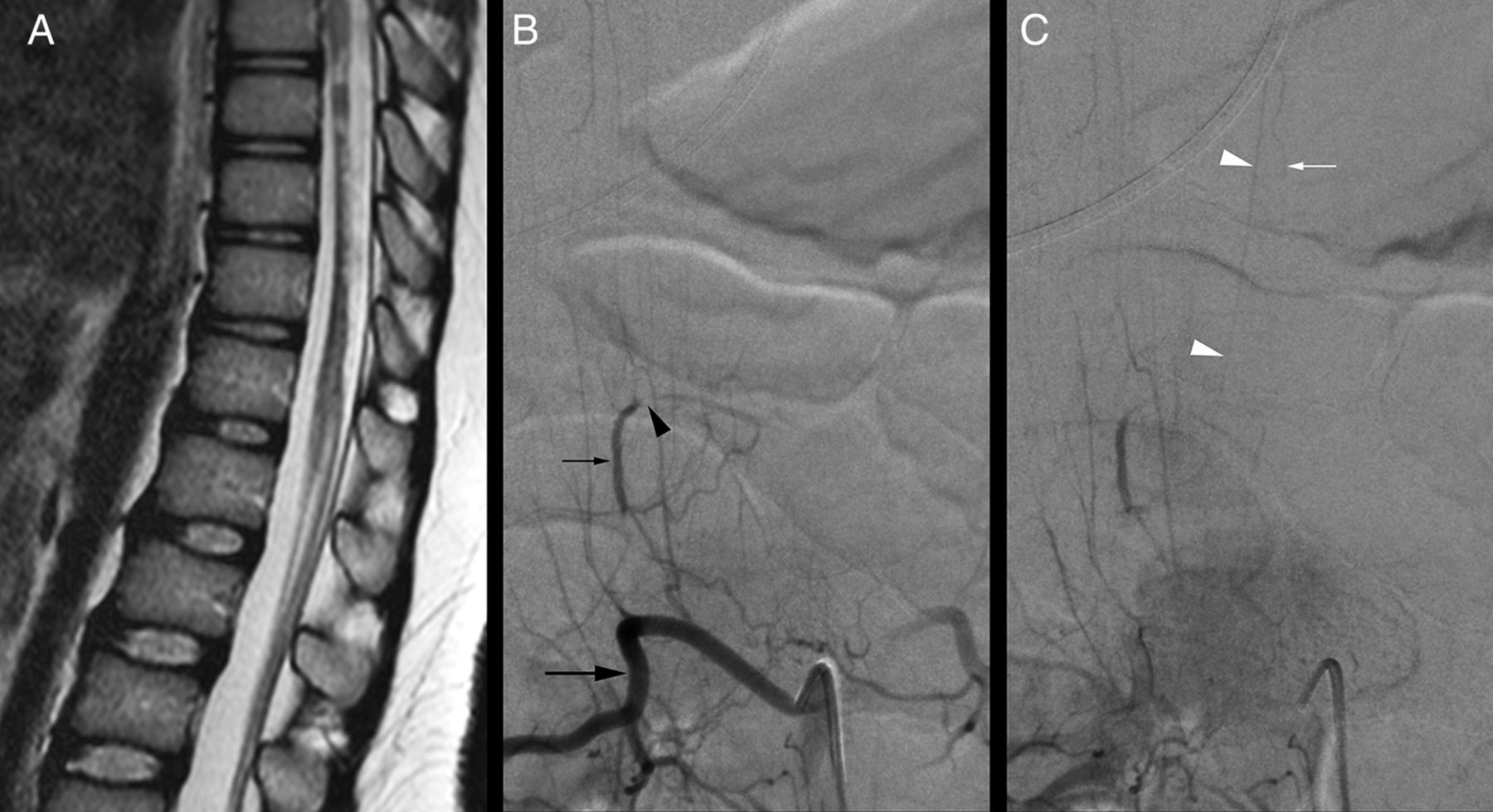 Periconal arterial anastomotic circle and posterior