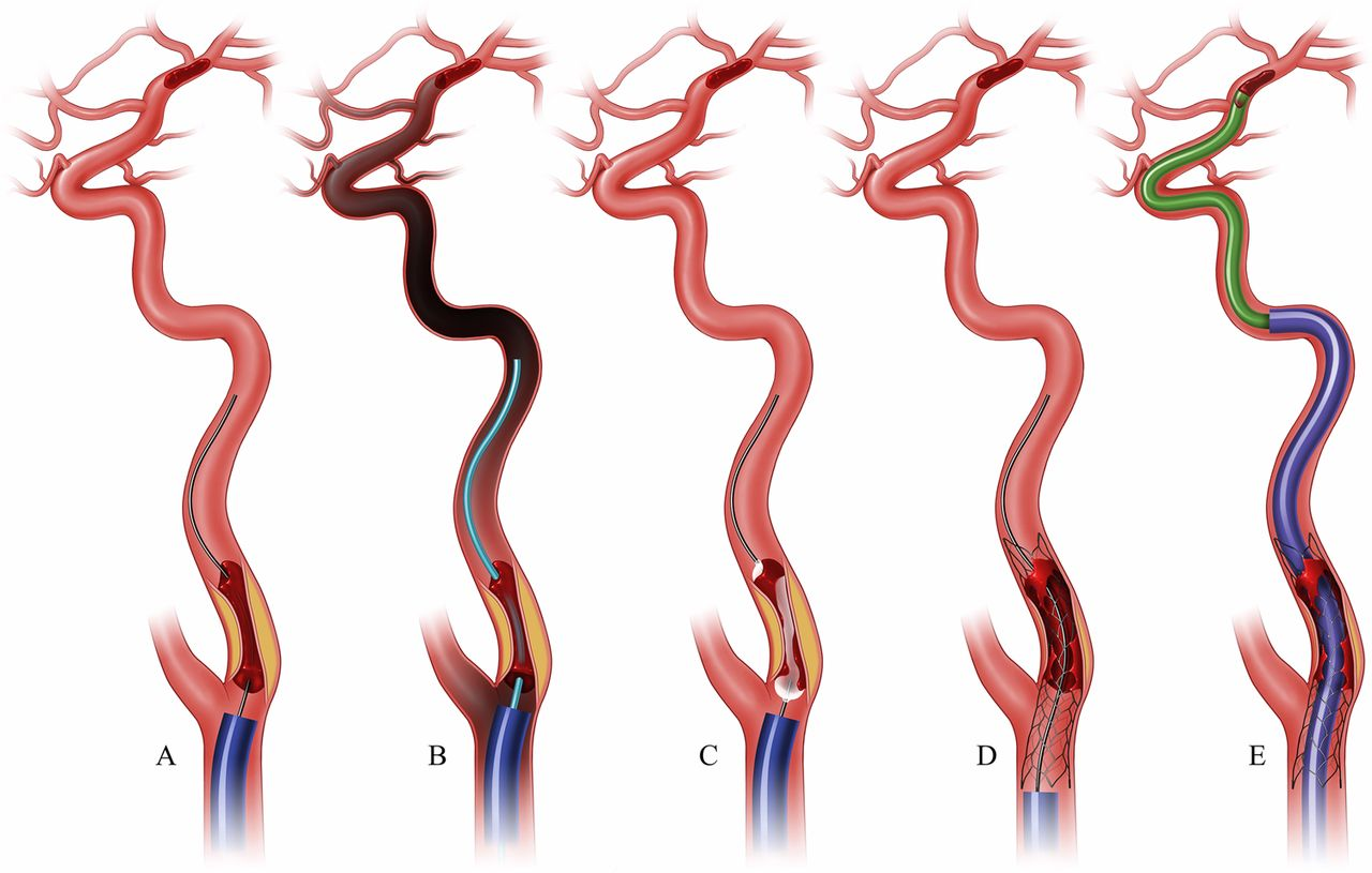 proximal to distal approach in the treatment of tandem occlusions