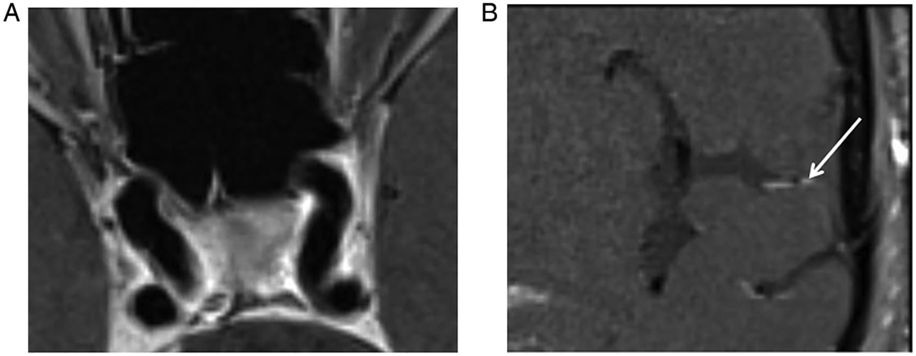 Early experience in high-resolution MRI for large vessel occlusions