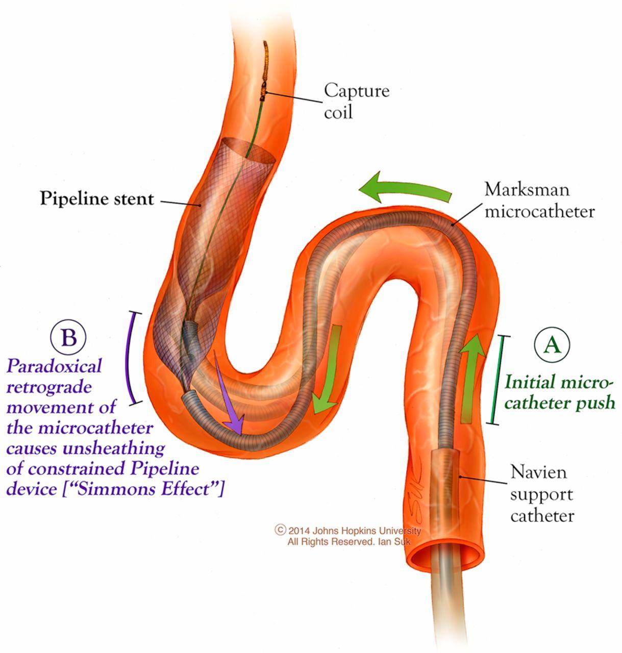 classification of cavernous internal carotid artery tortuosity: a
