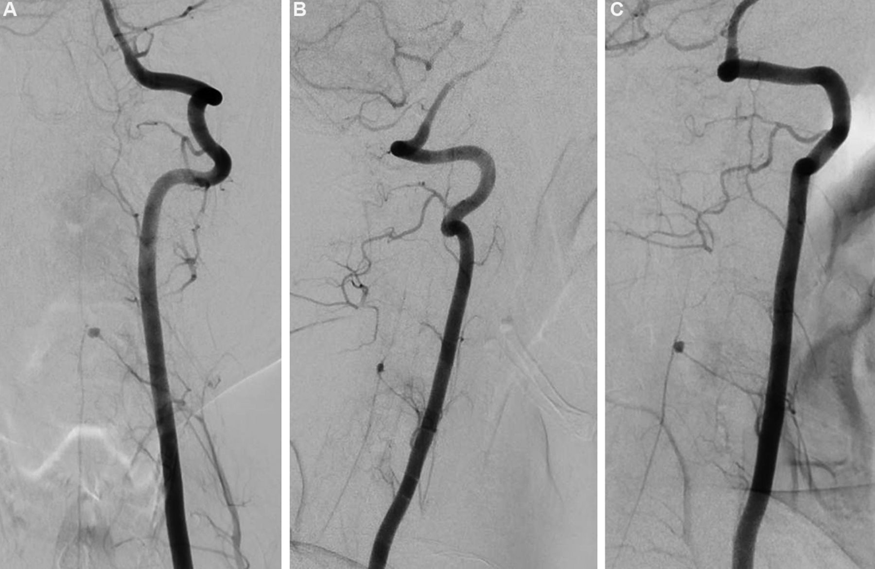 Conservative management of a post-traumatic pseudoaneurysm of the