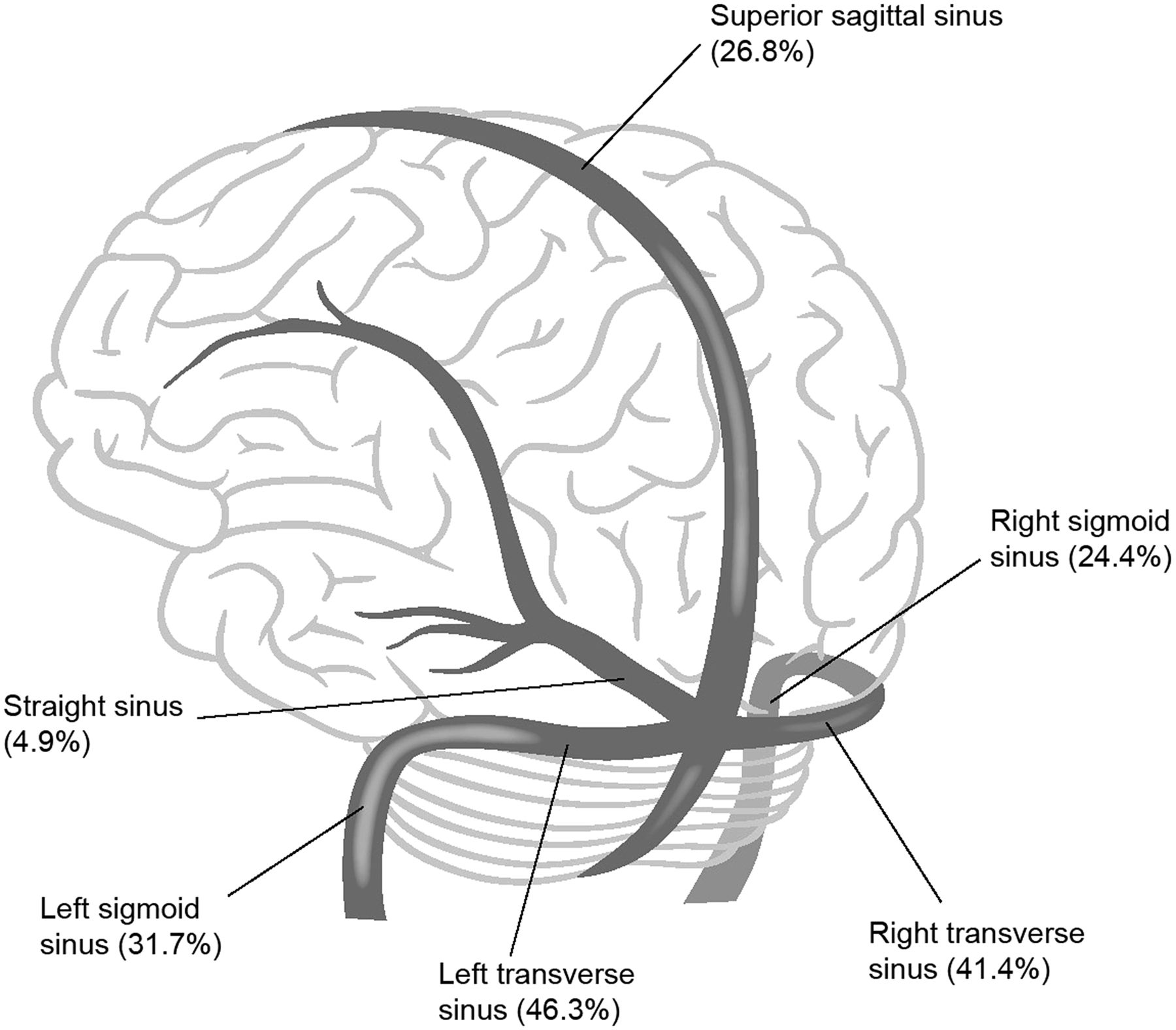 management and outcome of spontaneous cerebral venous