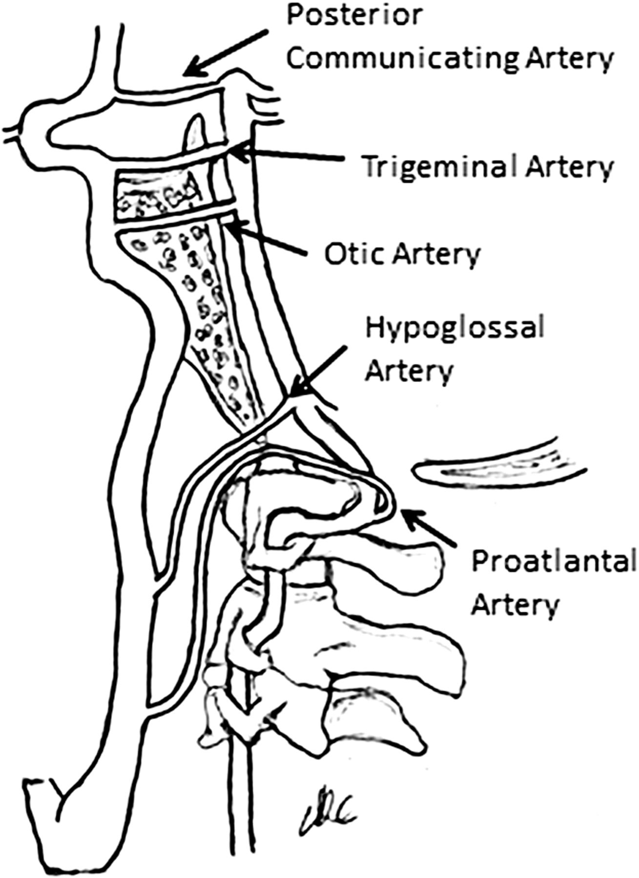 The transclival artery: a variant persistent carotid–basilar ...