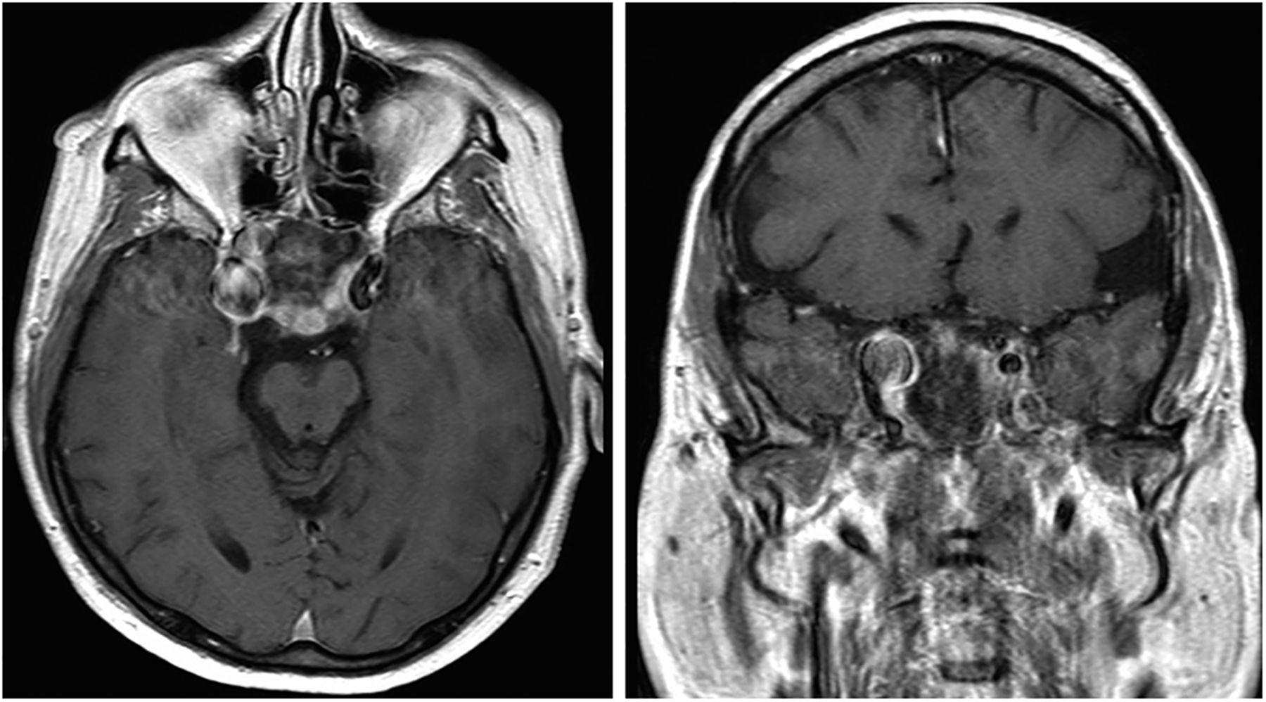spontaneous subarachnoid hemorrhage due to ruptured