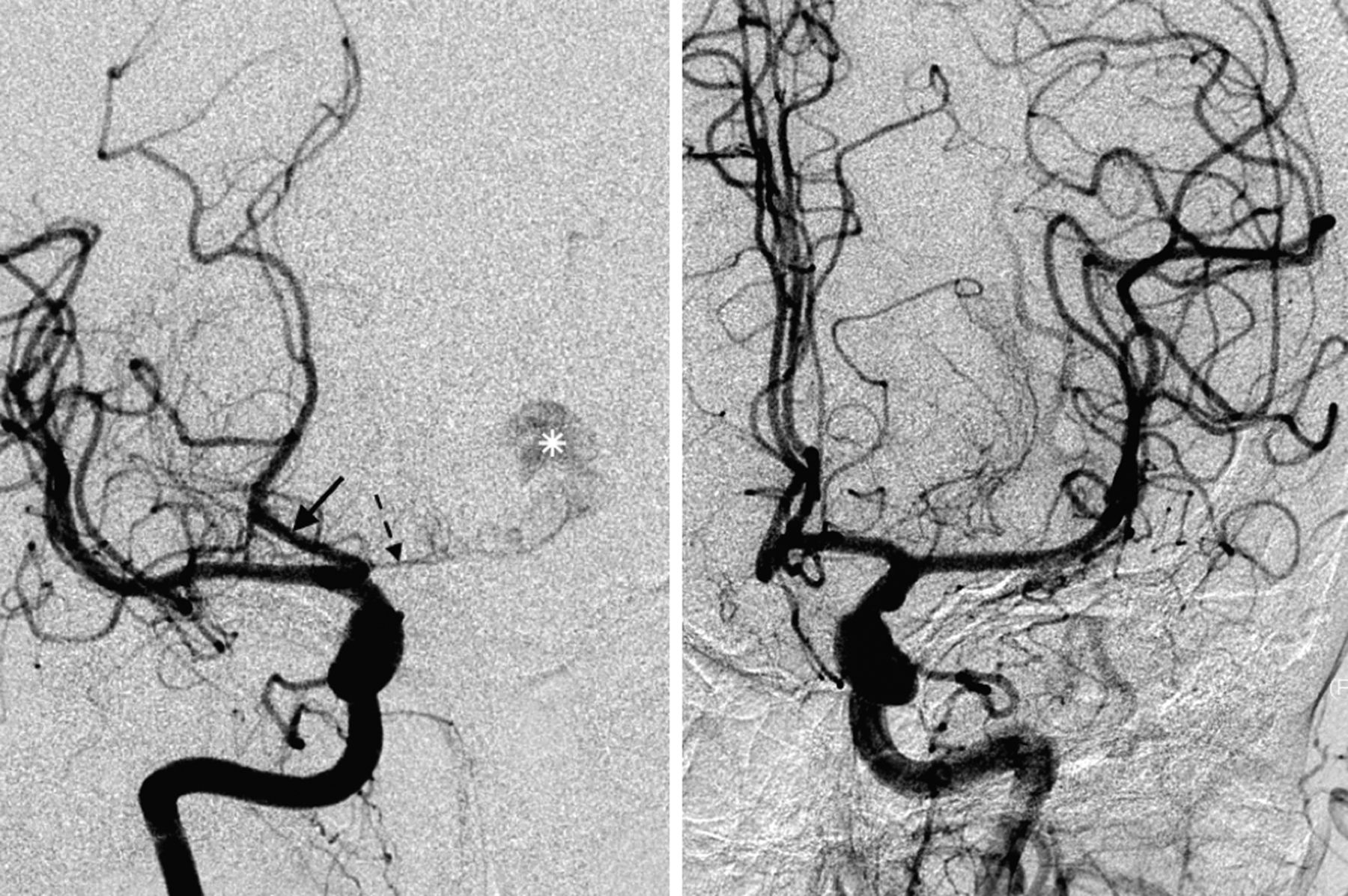 Low prevalence of fetal-type posterior cerebral artery in patients ...