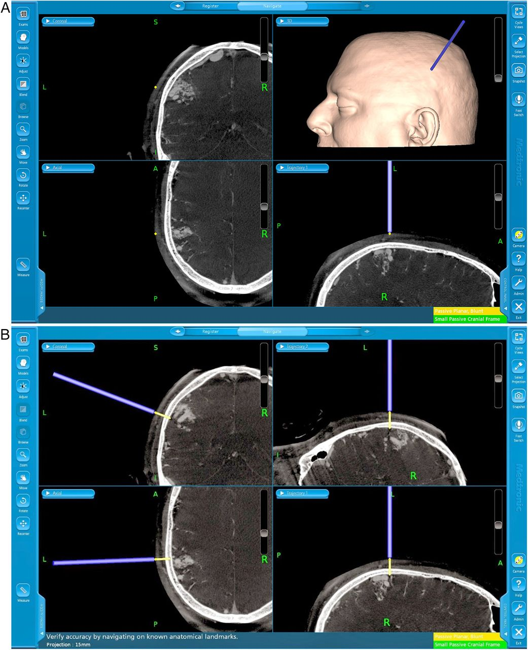 Cone-beam CT angiography (Dyna CT) for intraoperative localization ...