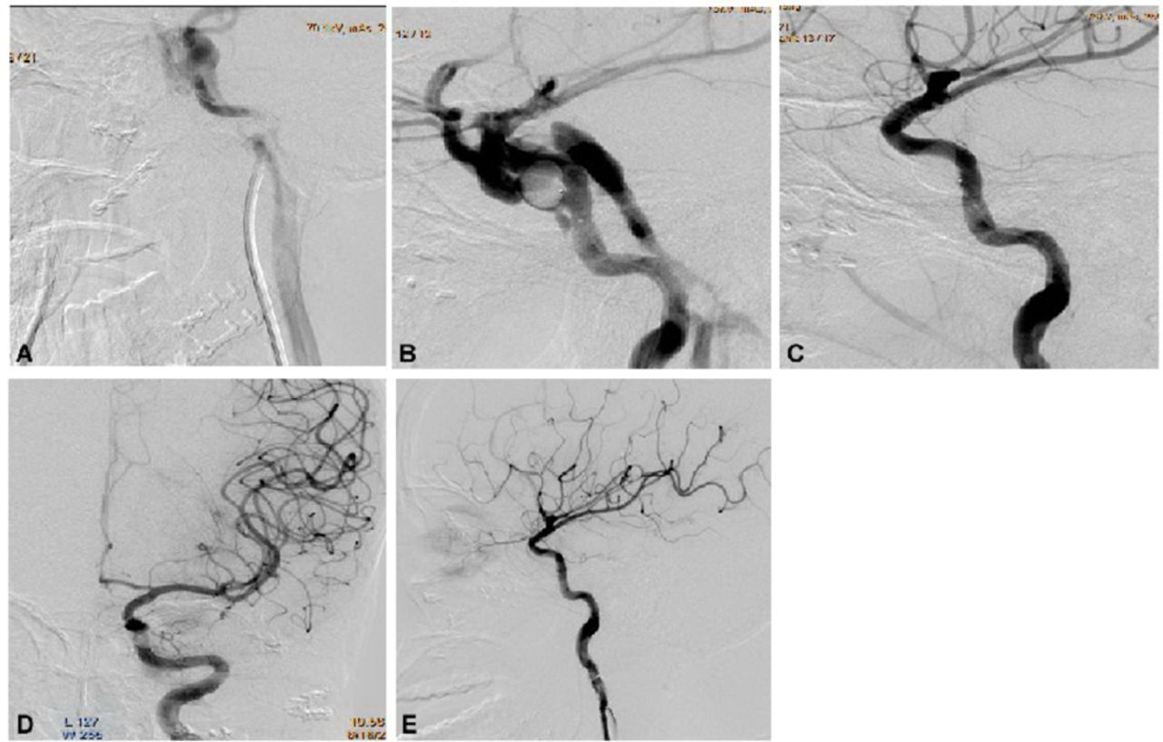 Recurrence risk factors in detachable balloon embolization of ...