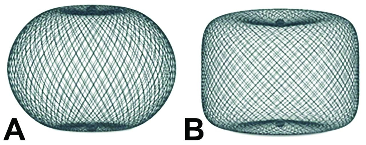 The Safety And Effectiveness Of The Woven Endobridge Web