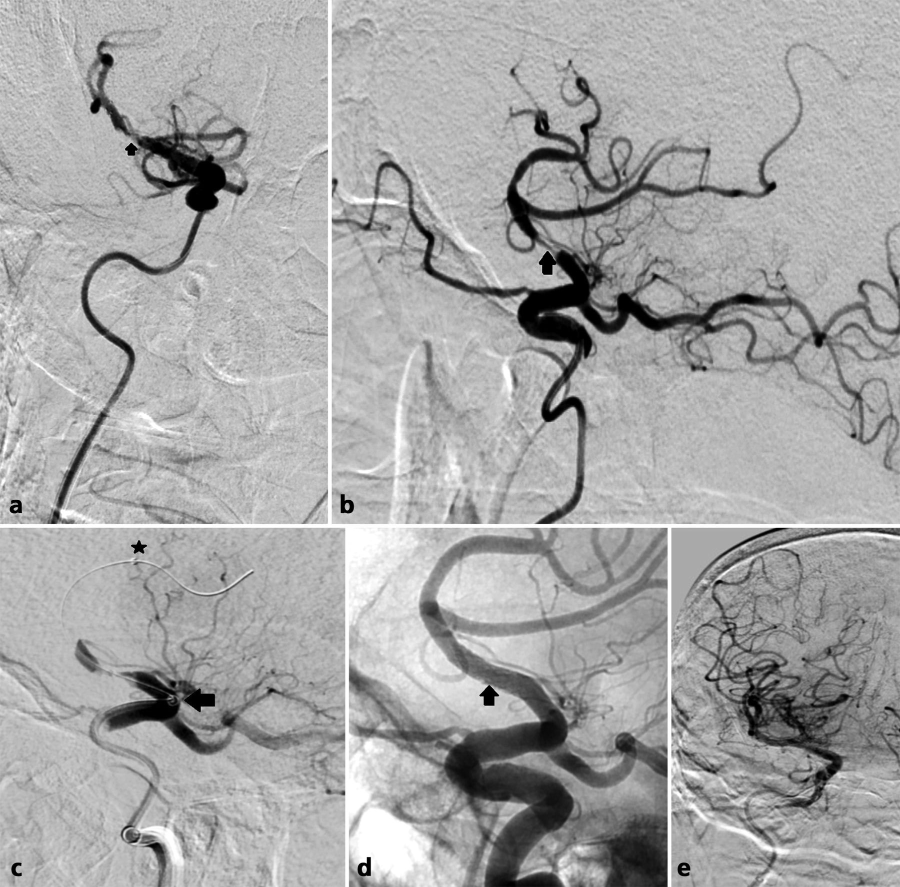 Balloon-mounted stents for acute intracranial large vessel