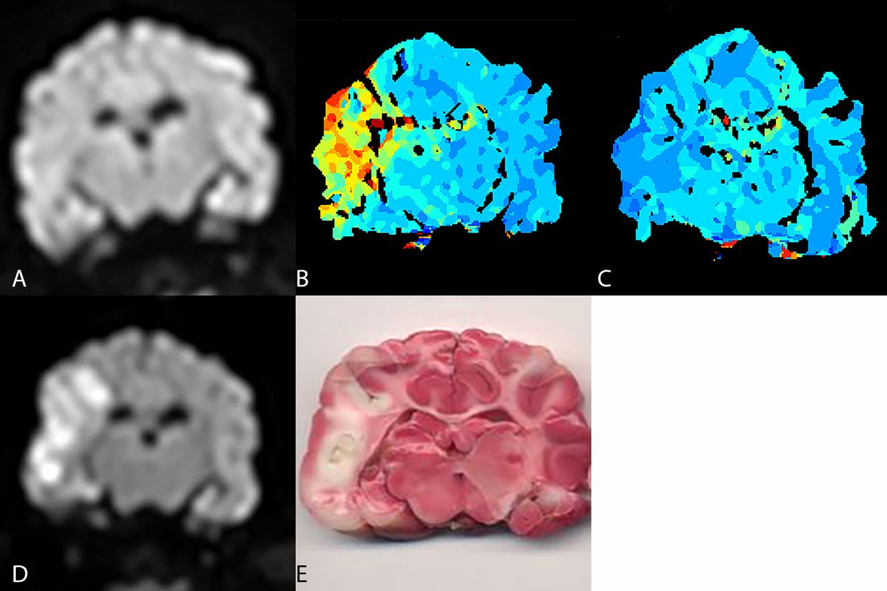 A canine model of mechanical thrombectomy in stroke