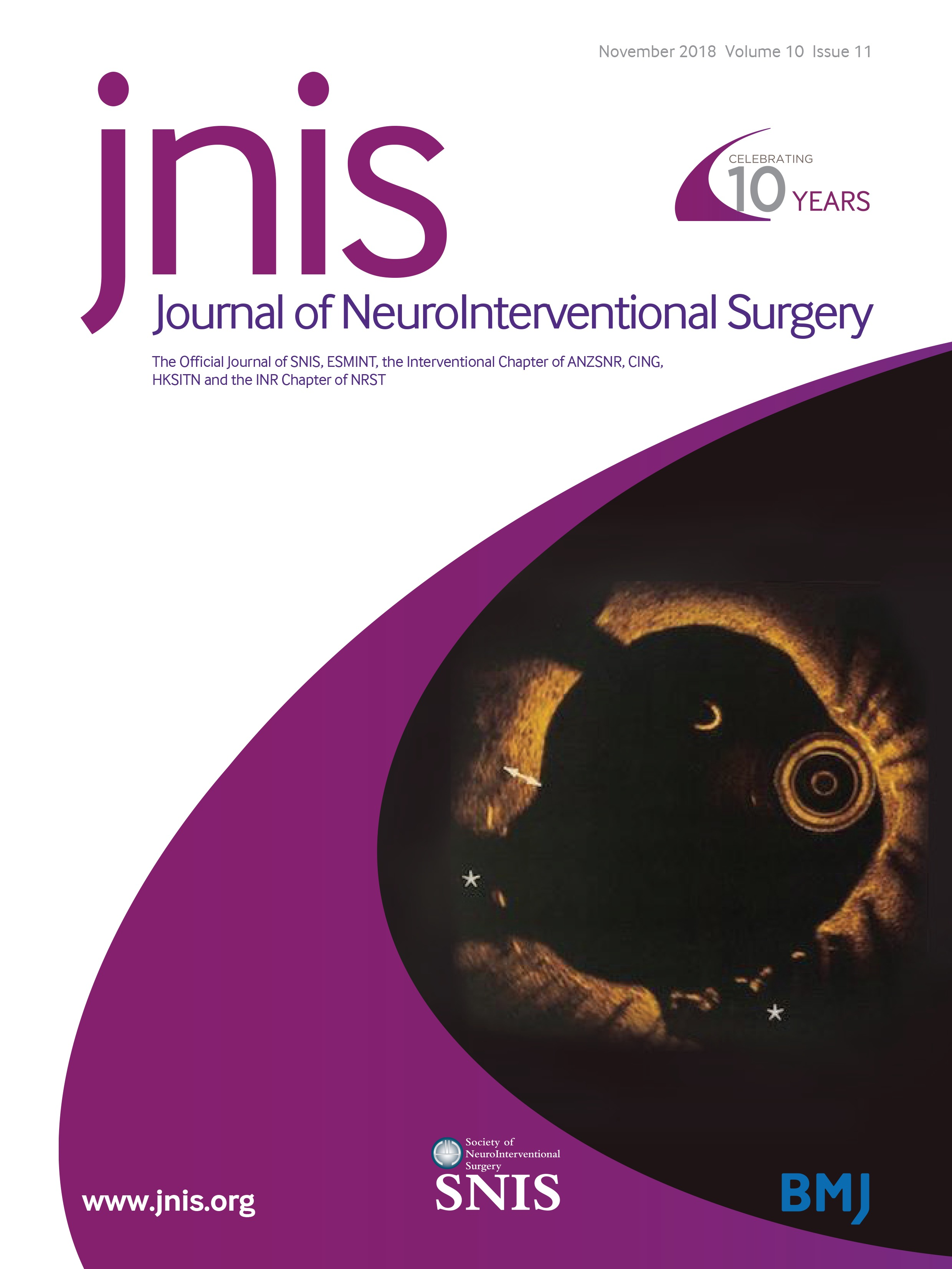 Standards of practice in acute ischemic stroke intervention