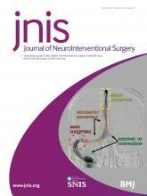 Journal of NeuroInterventional Surgery: 13 (7)
