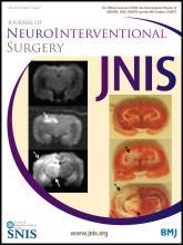 Journal of NeuroInterventional Surgery: 7 (5)