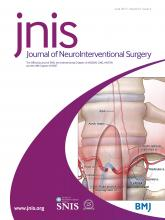 Journal of NeuroInterventional Surgery: 9 (6)