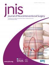 Journal of NeuroInterventional Surgery: 9 (6)