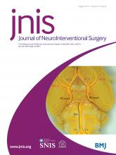 Journal of NeuroInterventional Surgery: 9 (8)